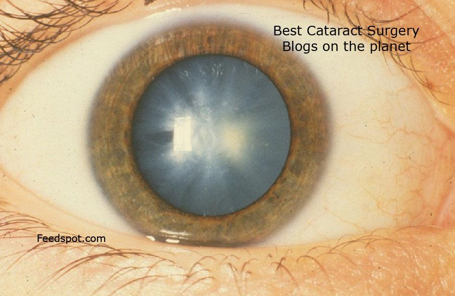 Cataract Surgery Blogs