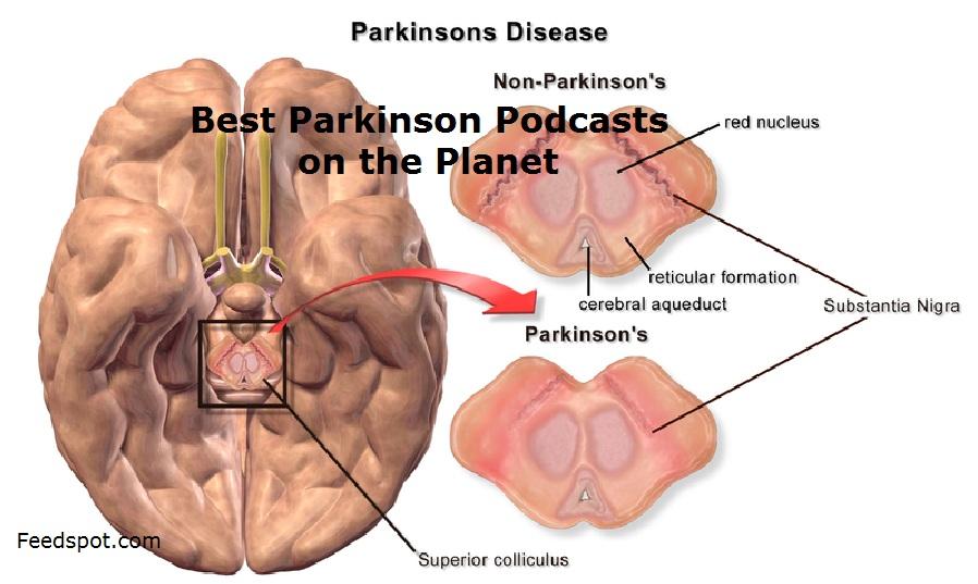 Parkinson Podcasts